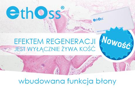 ethoss_news_01