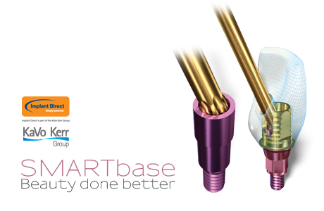 Nowość: SMARTbase – beauty done better