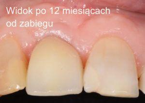 case01_6