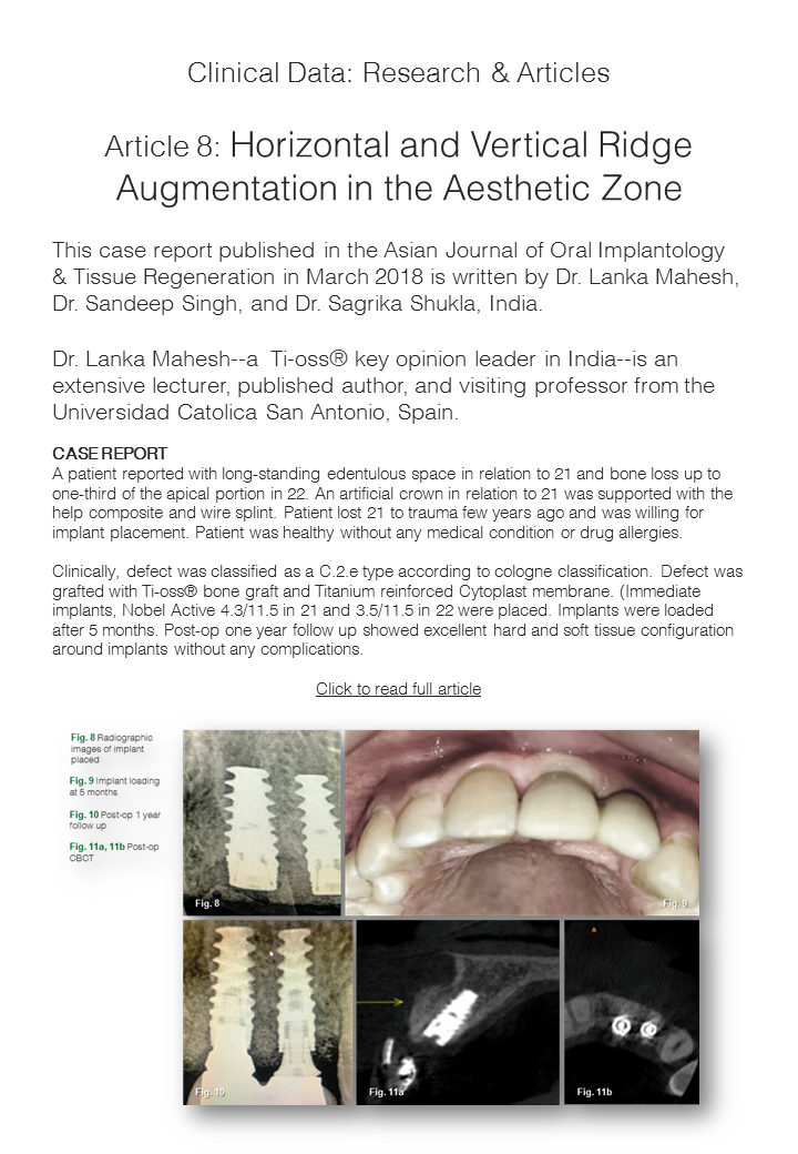 Ti-oss Horizontal and Vertical Ridge Augmentation in the Aesthetic Zone